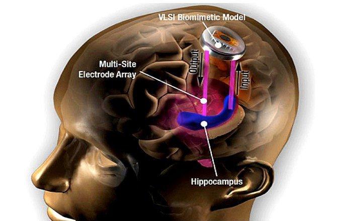 implante-cerebral-ted